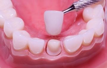 Реставрация коронки зуба