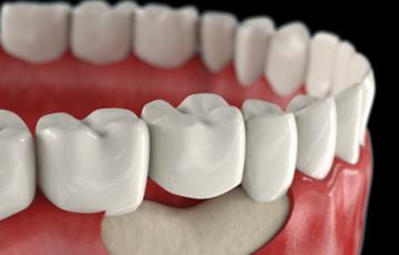 Имплантация — враг атрофии костной ткани