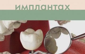 6 мифов об имплантах