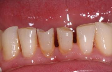 Протезирование при стираемости зубов