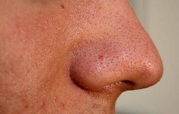 Расширенные поры на лице. Лечение