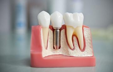 Варианты отсутствия зубов и имплантация